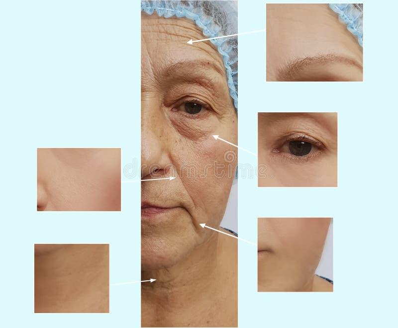 Zmarszczenie kobiety twarzy starszego skutka odmładzania podnośna korekcja przed i po kosmetycznym procedury starzeniem się zdjęcie stock