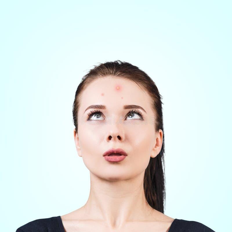 Zmieszana dziewczyna z trądzikiem na jej czole fotografia royalty free