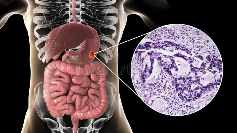 Znosi adenocarcinoma i zaświeca micrograph, żołądkowy nowotwór, ilustracja ilustracji