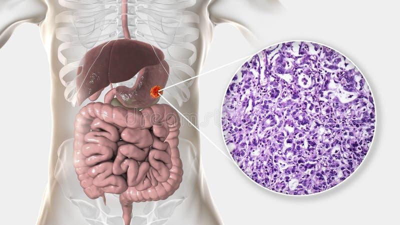 Znosi adenocarcinoma i zaświeca micrograph, żołądkowy nowotwór, ilustracja ilustracja wektor
