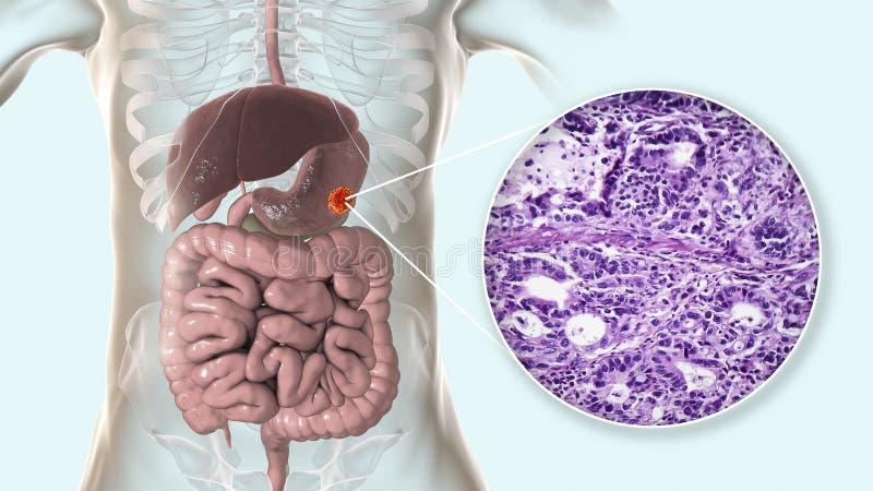 Znosi adenocarcinoma i zaświeca micrograph, żołądkowy nowotwór, ilustracja royalty ilustracja