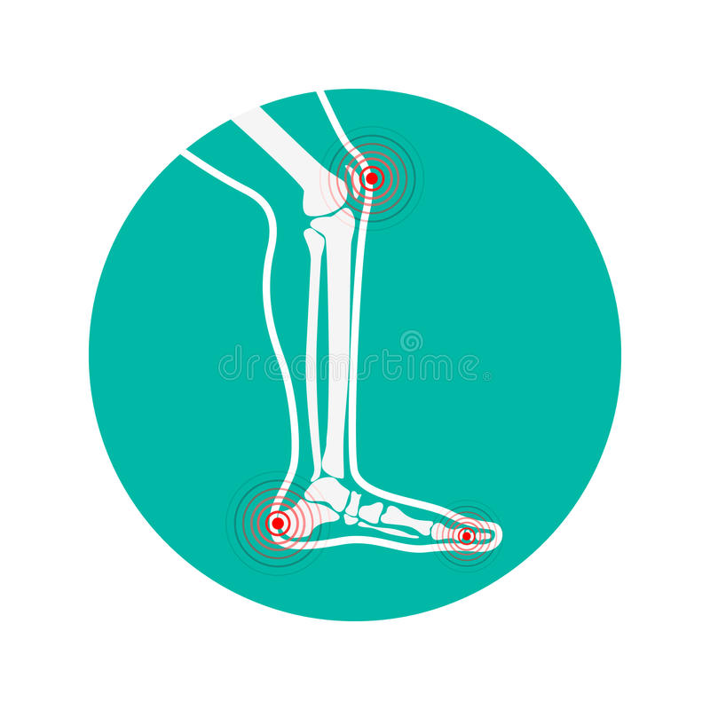 Zonas humanas da dor de pé Elementos do projeto para infographic ilustração stock
