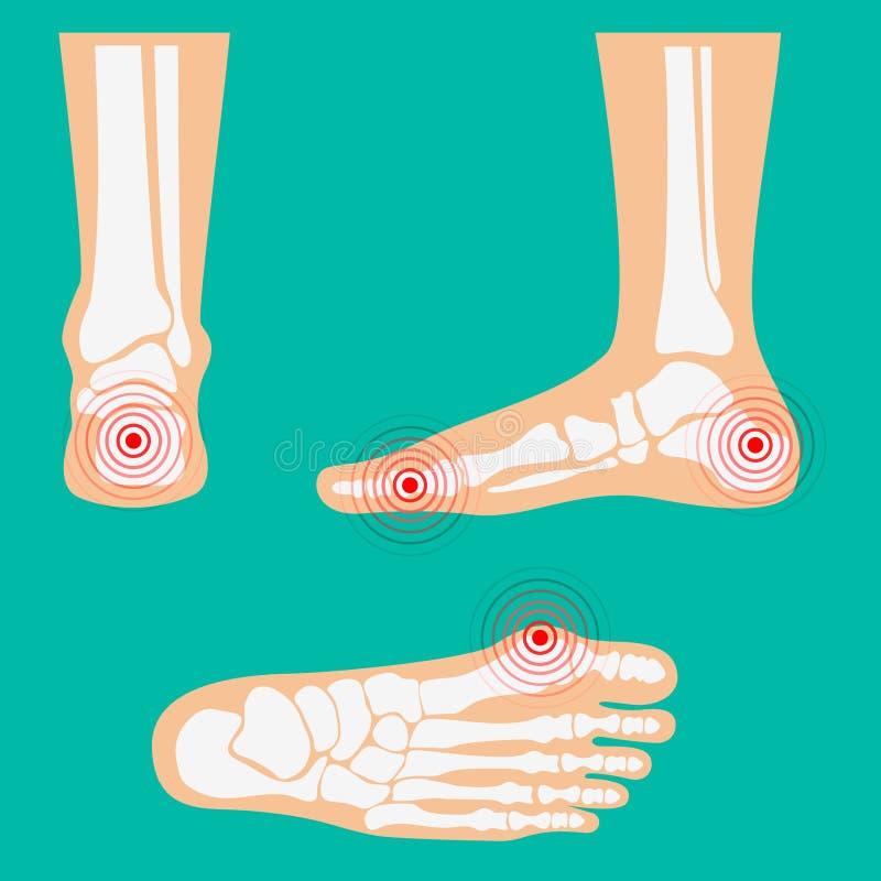 Zones humaines de douleur dans la jambe illustration de vecteur