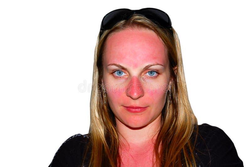 Zonnebrand op het gezicht van een meisje royalty-vrije stock afbeeldingen