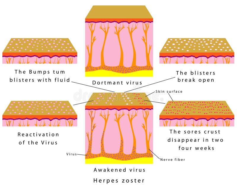 Zoster de herpes ilustração stock