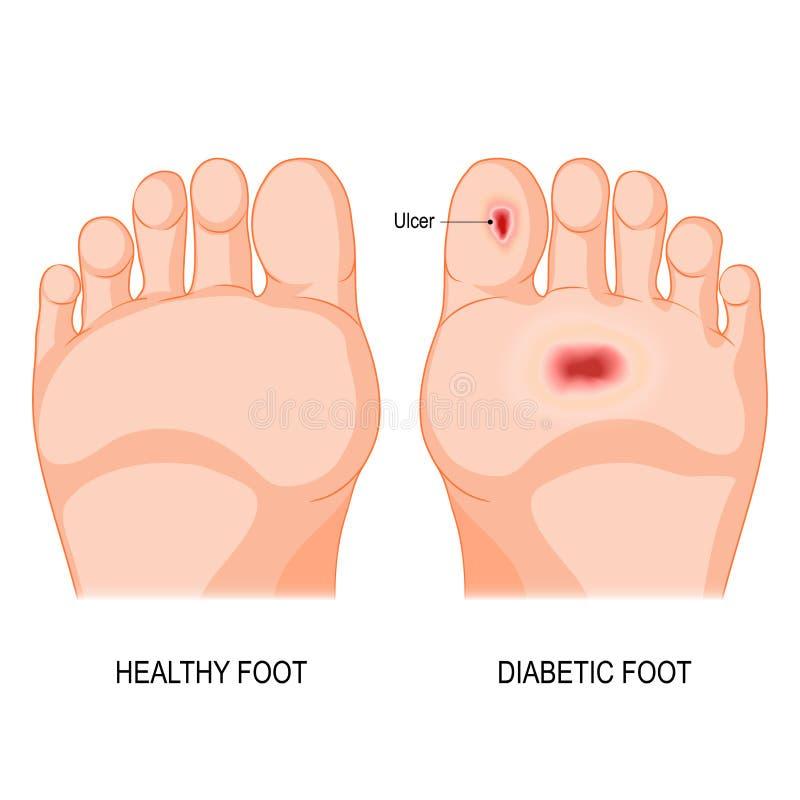 Zuckerkranker Fuß vektor abbildung