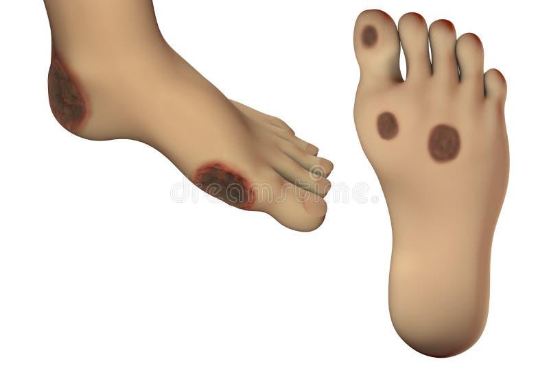 Zuckerkrankes Fußgeschwür lizenzfreie abbildung