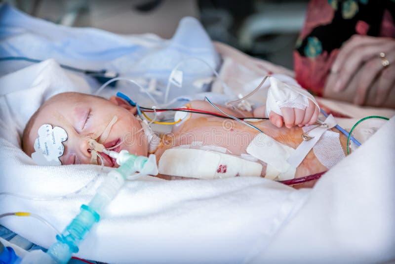 Zuigeling, kind in intensive careeenheid na hartchirurgie stock foto's