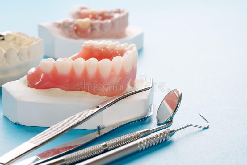 Zupełny denture lub pełny denture fotografia stock