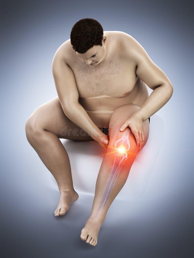 Zwaarlijvig bemant pijnlijke knie stock illustratie