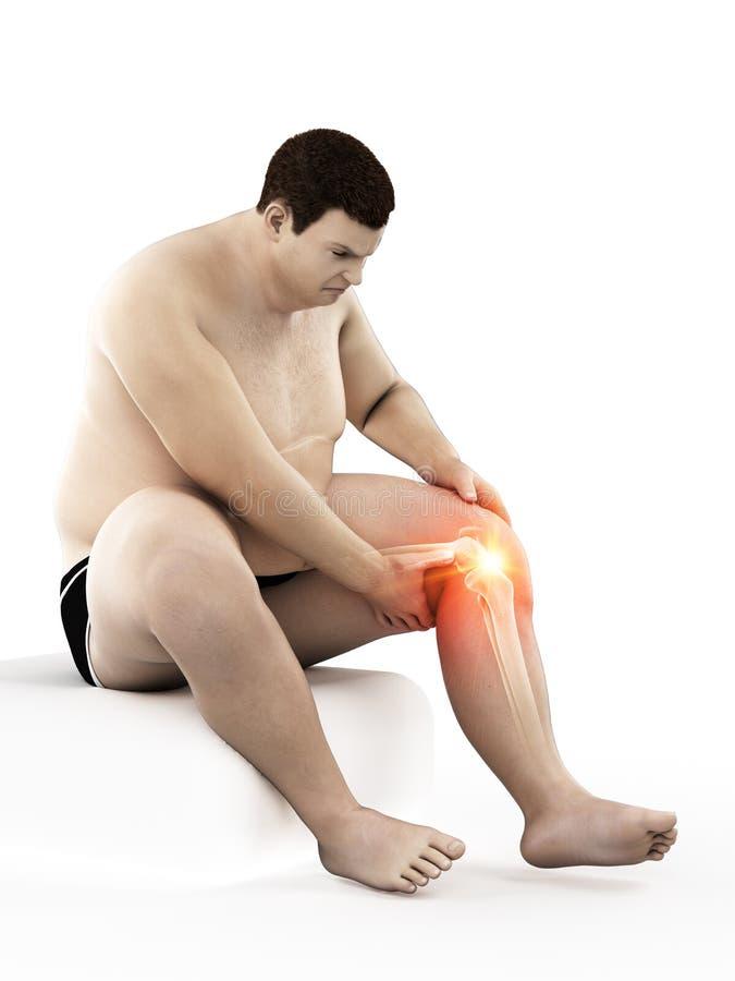 Zwaarlijvig bemant pijnlijke knie vector illustratie