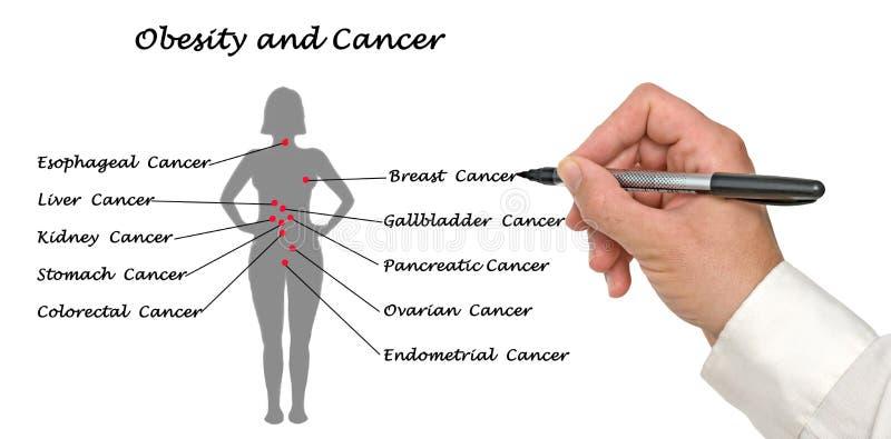 Endometrial Kanker In Schepen Stock Afbeelding ...