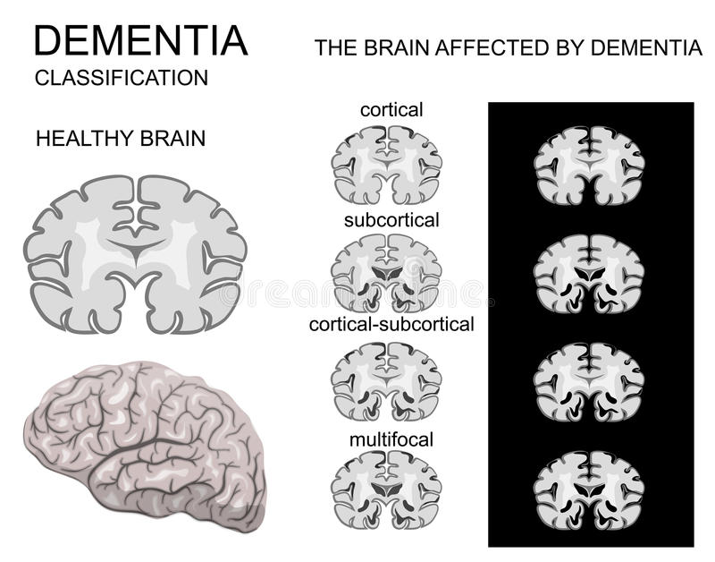 Zwakzinnigheid, de ziekte van Alzheimer royalty-vrije illustratie