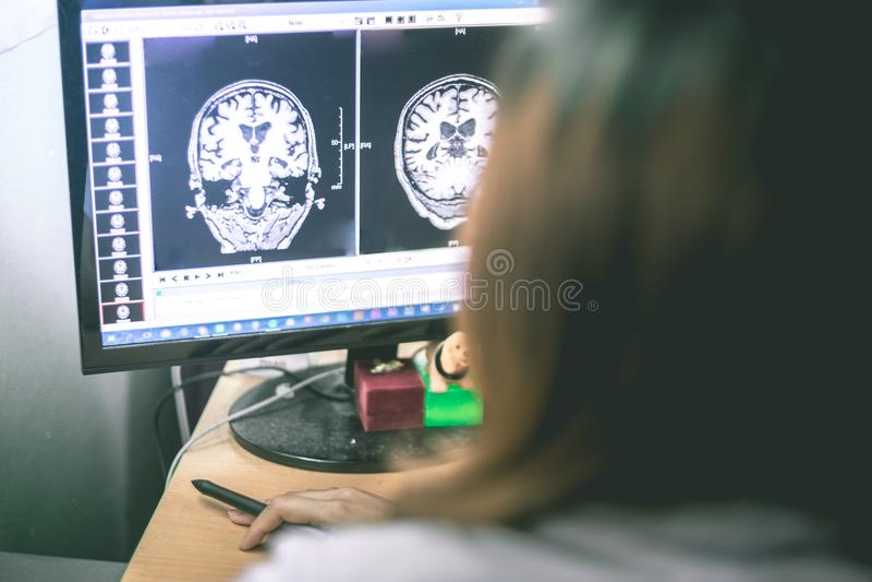 Zwakzinnigheid op MRI-film hersenenzwakzinnigheid royalty-vrije stock fotografie