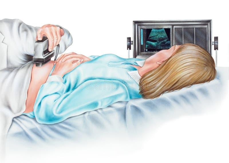 Zwangerschap - Ultrasonogram van een Zwangere Vrouw stock illustratie