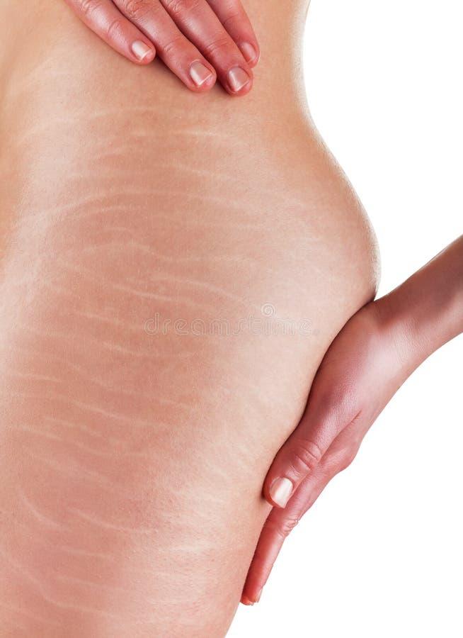 Zwangerschapsstrepen en cellulite stock afbeeldingen