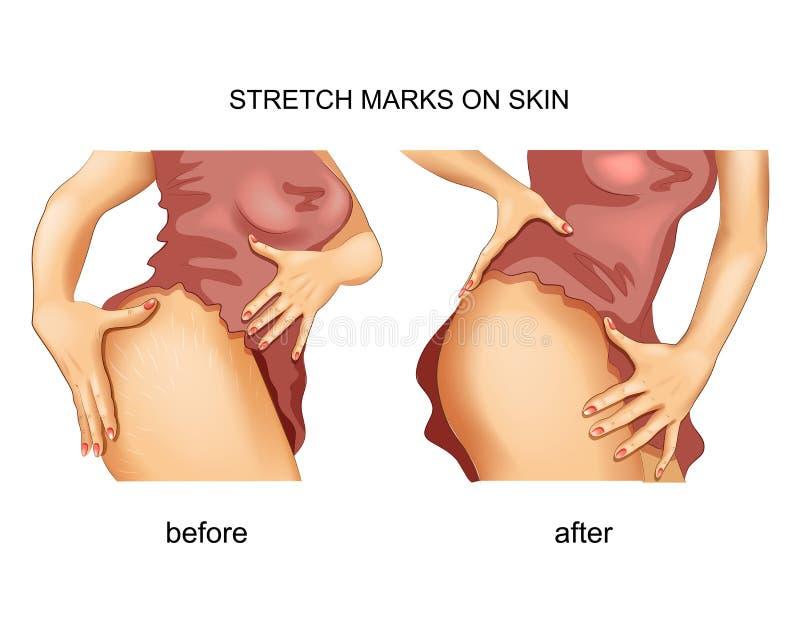 Zwangerschapsstrepen op de huid vector illustratie
