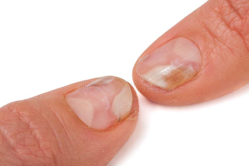 Zwei Finger der Hand mit einem Pilz auf den Nägeln lokalisierten weißen Hintergrund lizenzfreie stockfotografie