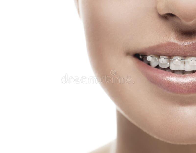 Związuje zębu usta orthodontics kobiety obrazy royalty free