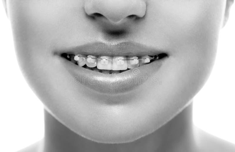 Związuje zębu usta orthodontics kobiety czarny white obraz royalty free