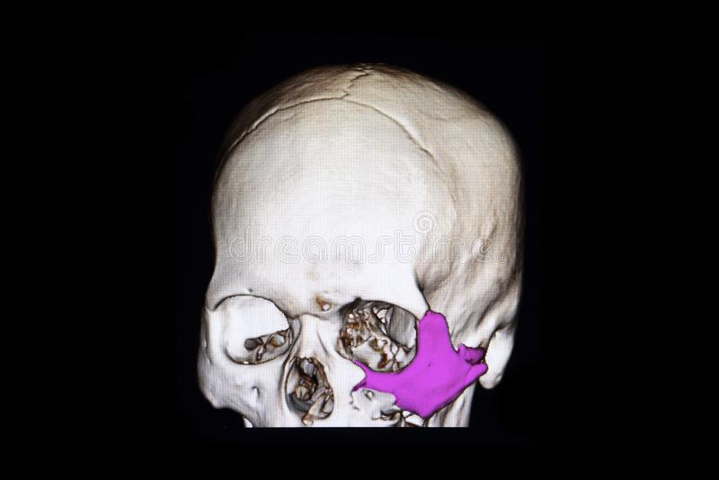 zygoma de la fractura y piso de la órbita foto de archivo libre de regalías