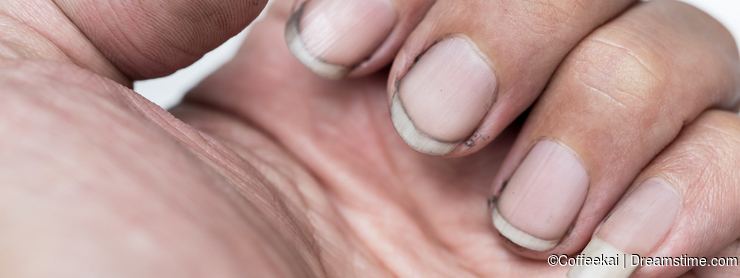 Dirty finger nails unhealthy pile up germ and bacteria unclean