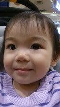 Kai Lee Wee (Pimples)