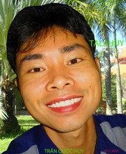 Huy Tran Quoc (Tranquochuyvn)