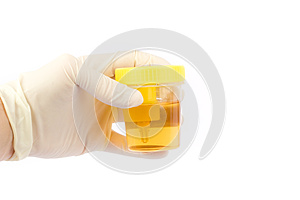 Hand holding a urine sample