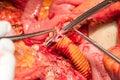 Abdomen arteries and veins