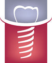 Abstract dental tooth sign illustration of screwed into gum health concept Royalty Free Stock Photos