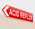 Acid reflux concept illustration depicting a sign with an Royalty Free Stock Image