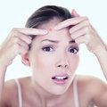 Acne pimple skin blemish spot skin care girl beauty pressing on problem face woman with looking at Stock Image