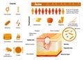 Acne. skin problems. medicine in medical infographics.