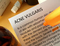 Acne treatments Royalty Free Stock Photography