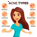 Acne Types Vector. Girl With Acne. Skin Care. Treatment, Healthy. Nodule, Whitehead. Isolated Flat Cartoon Character