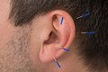 Acupuncture needles on ear Royalty Free Stock Photo