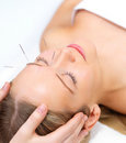 Acupuncture therapy - alternative medicine Stock Photo