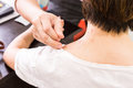 Acupuncturist pricking needle into skin, with shallow depth of f Royalty Free Stock Photo