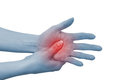 Acute pain in a woman palm Royalty Free Stock Photo
