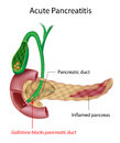 Acute Pancreatitis Royalty Free Stock Photography