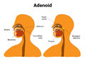 Adenoid normal and enlarged adenoid side view to show the position of the adenoids the adenoids are glands found at the back of Royalty Free Stock Photography