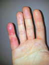 Allergic finger hand histamin stress Royalty Free Stock Photography