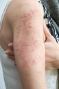 Allergic rash dermatitis Royalty Free Stock Photo