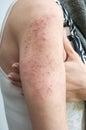 Allergic rash dermatitis skin texture of patient Stock Photos