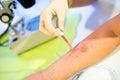 Allergy - skin prick tests Royalty Free Stock Photo