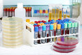 Analysis of blood tubes in lab Royalty Free Stock Photo