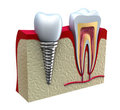 Anatomy of healthy teeth and dental implant