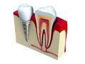 Anatomy of healthy teeth and dental implant in jaw Royalty Free Stock Photo