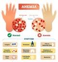 Anemia vector illustration. Labeled scheme with red blood cells. Royalty Free Stock Photo